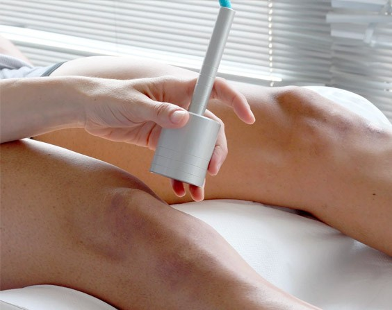 Laser-Treatments-Legs